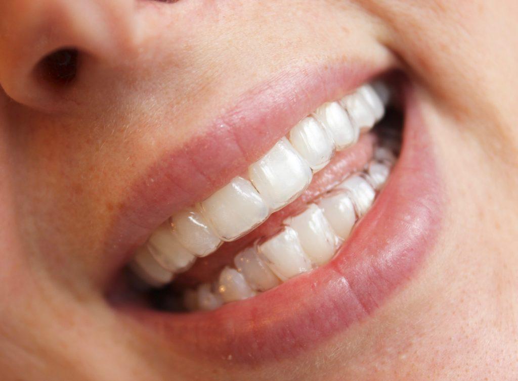 my smile brilliant smile #ad